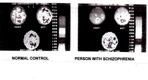 These PET scans were taken while study participants performed simple tasks. Top left: the frontal cortex is lighting up; Top right: the frontal cortex is not lighting up. This sluggishness of blood flow and metabolic funtioning is traced back to to overproduction of the neurotransmitter Dopamine